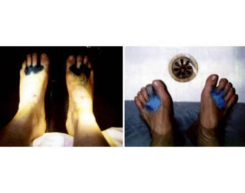 Imag(in)ed Malady: Blue Feet